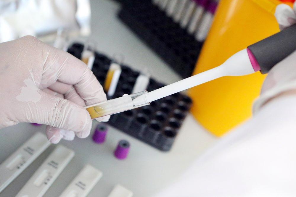 Тест на наличие антител к COVID-19