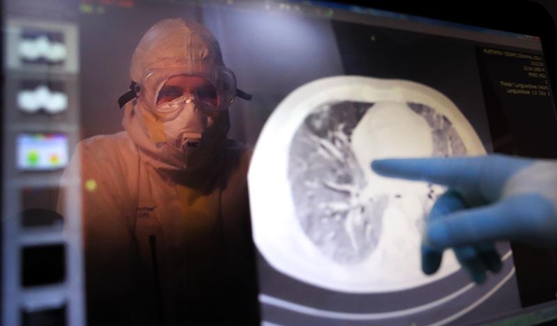 Врач исследует снимок КТ легких
