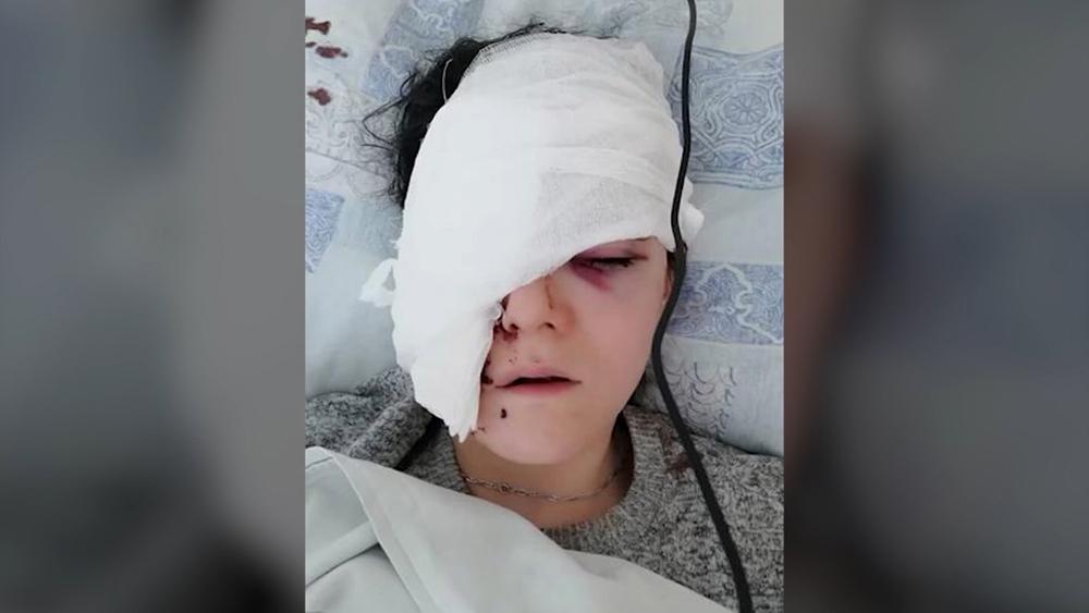 Девушка с черепно-мозговой травмой