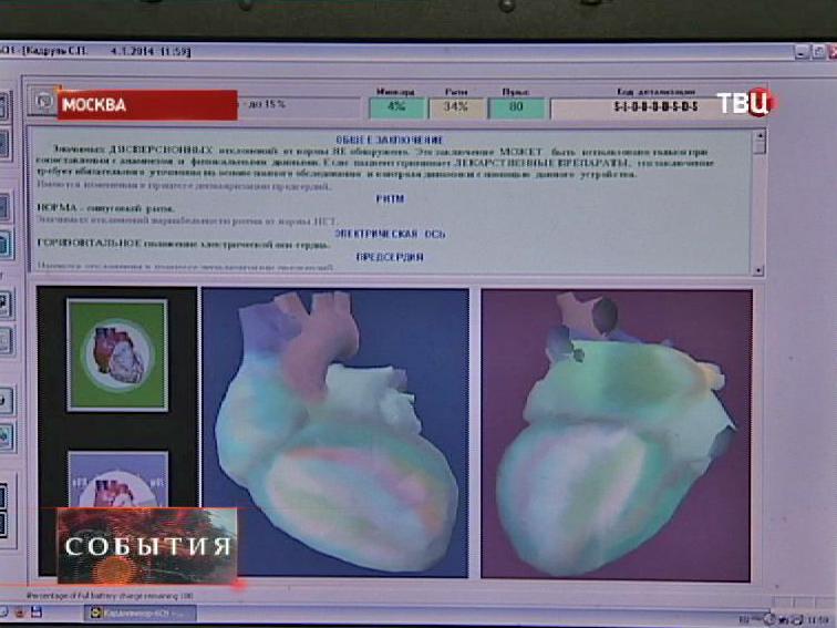 Компьютерная модель сердца на мониторе
