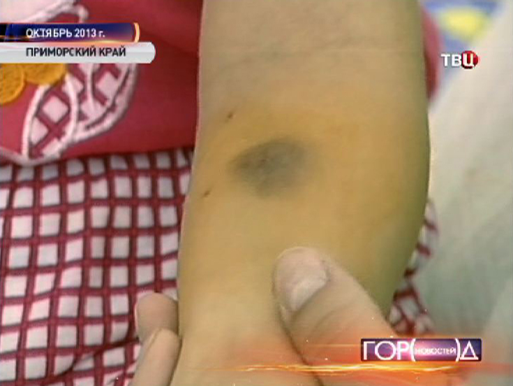 Школьники в Приморском крае попали в больницу после пробы Манту