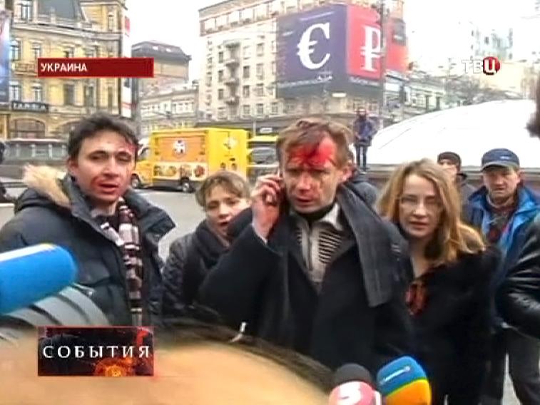 Пострадавшие в уличных беспорядках в Киеве